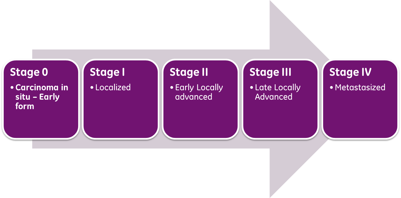 Cancer_stages